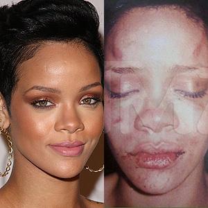 Rihanna abuse